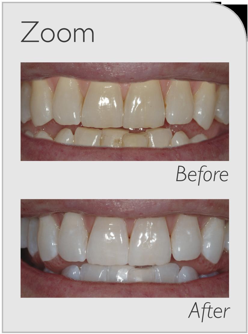 Teeth Whitening Chisholm
